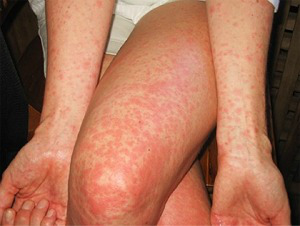 zika-virus-2-rash